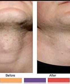 SAFECUT Dr A-Z Anti Razor Bump & Ingrown Hair Formula 125ml For Women &  Men: Best Treatment for Ingrown Hairs, Acne, Razor Bumps, Razor Burn: Use